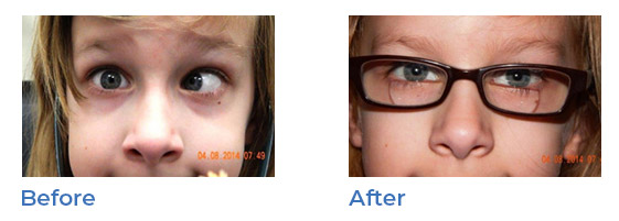 strabismus - before and after 01