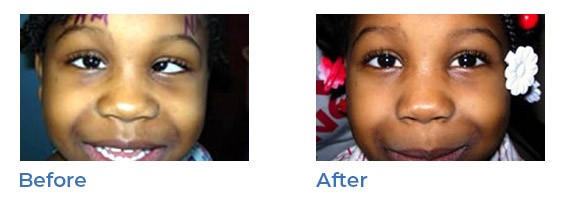 strabismus - before and after 02