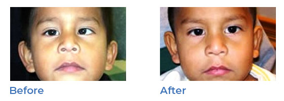 strabismus - before and after 03
