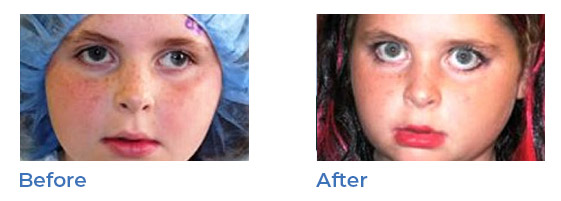 strabismus - before and after 04