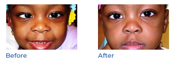 strabismus - before and after 05